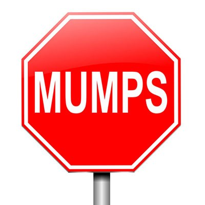 NEWS STORY mumps.jpg